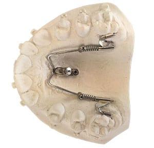 Miniimplantate
